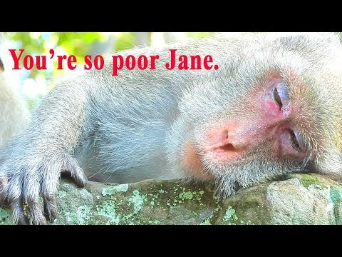 Poor Jane feels tired cos her leg make her not sleep well hurt so much so she couldn't sleep