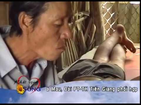 KVS Năm 1 (CT.Số 45) Hoàn cảnh gia đình bà Nguyễn Thị Thu, Thốt nốt, Cần Thơ