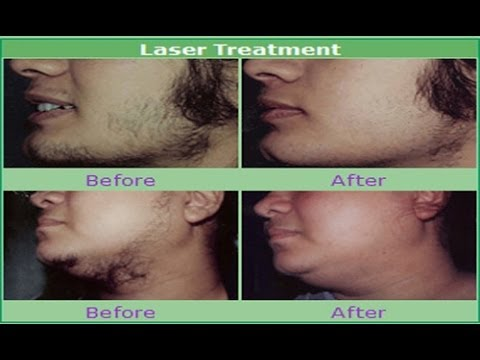 Vibes – laser treatment for unwanted hair Photos,Vibes – laser treatment for unwanted hair Images,Vibes – laser treatment for unwanted hair Pics