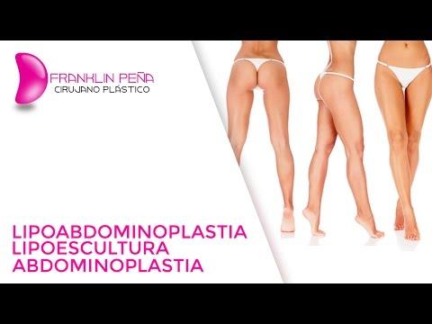 Lipoabdominoplastia. Lipoescultura y Abdominoplastia.