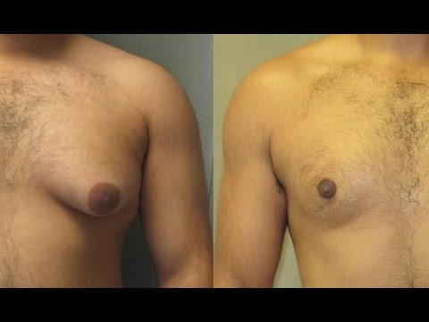 HOW TO FIX MAN BOOBS INSTANTLY - GET RID OF THEM