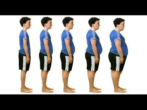 Overweight & Obese Kids: The Facts