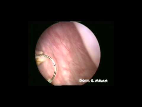 Resezione endoscopica di neoformazione vescicale singola peduncolata