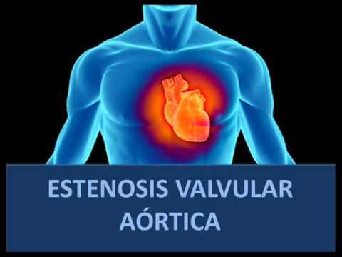 Estenosis valvular aórtica - Fisiopatología