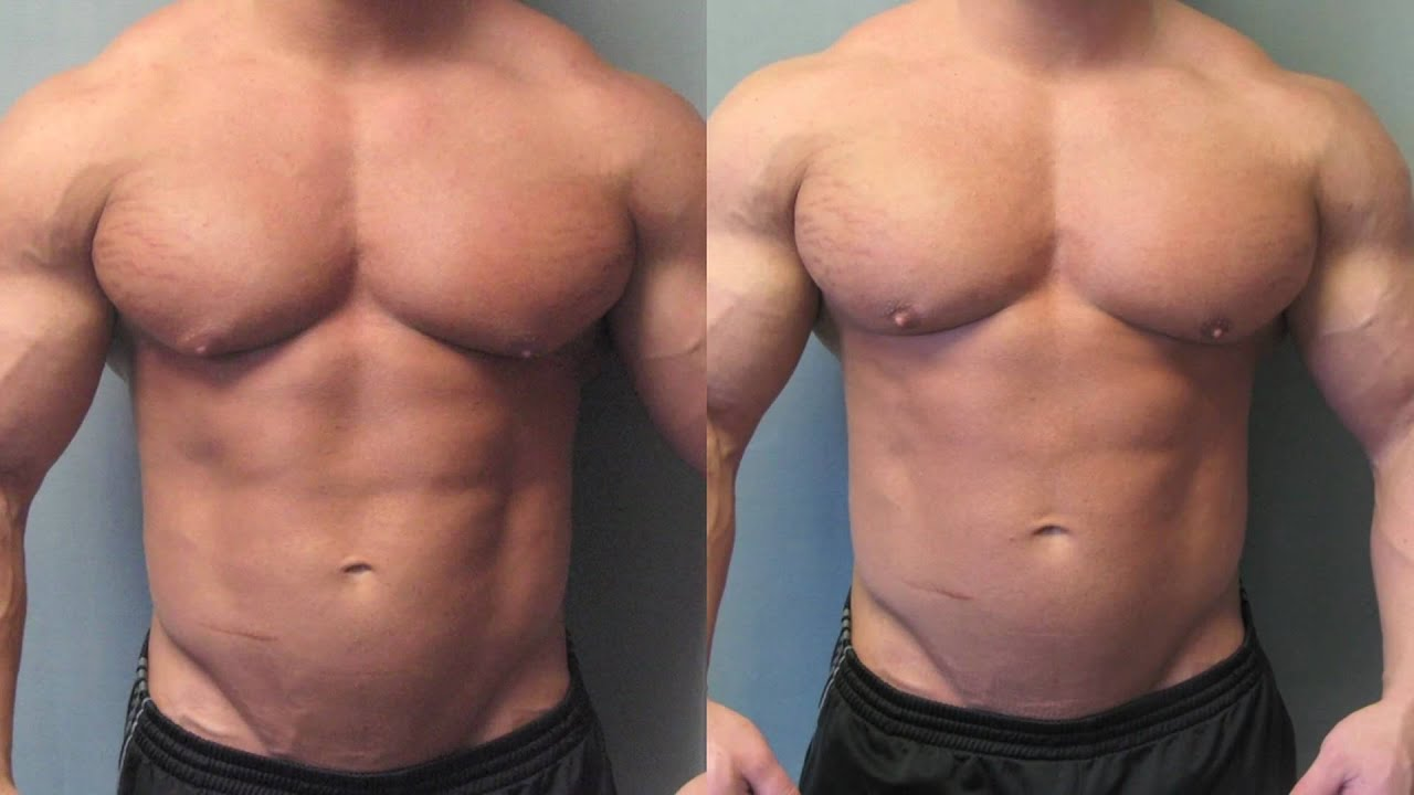 Bodybuilders with Gynecomastia - Surgery by Dr. Blau