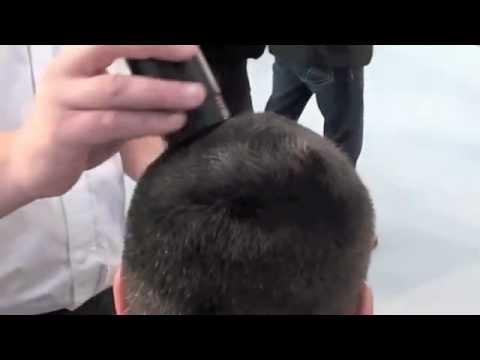 Ecobell alternativa sem dor implante de cabelo transplante capilar solução calvície