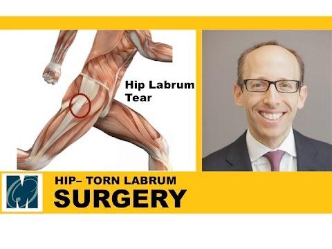 Hip Pain - Torn Labrum Hip - YouTube
