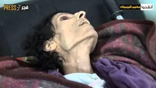 الجوع يفتك بإمرأة ورجل في مخيم اليرموك المحاصر | زووم