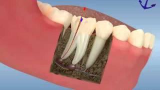 Kanal tedavisi nasıl yapılır? - diş kanal tedavisi