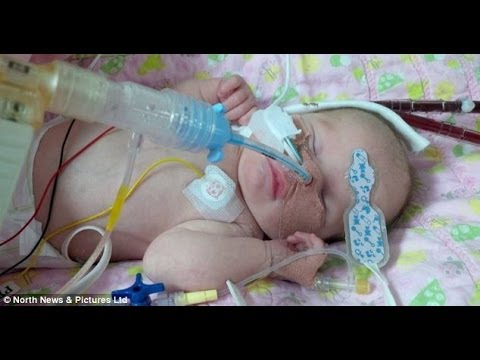 World's youngest' heart op baby Tiarna Middleton dies