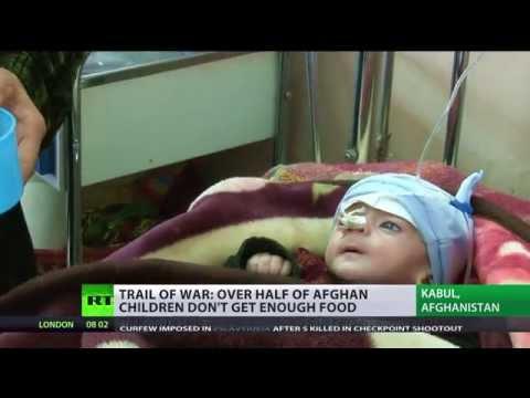 Children of War: 50%+ Afghan kids starving