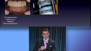 2012 AAOMS Dental Implant Conference Dr. Dean's Presentation
