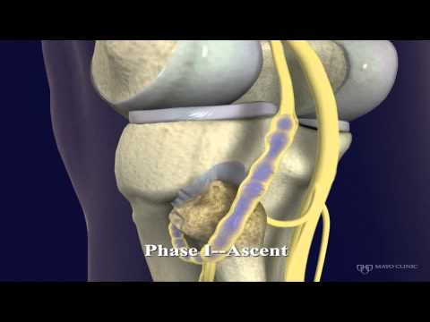 Peroneal and Tibial Intraneural Ganglion Cysts in the Knee Region: Video 1