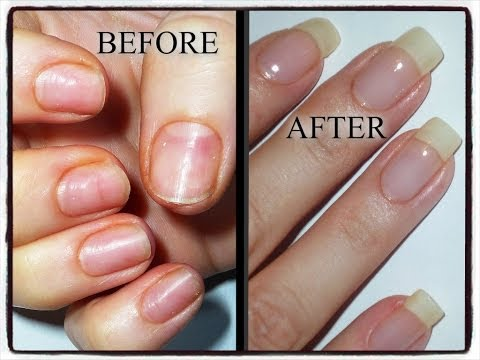 Natural Way To Strengthen Nails After Acrylics