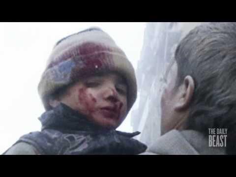 Syrian Children Bear Brunt of War - Darkroom