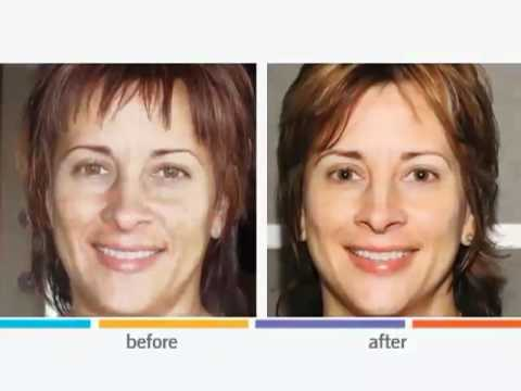 Rodan + Fields Dermatologists - Product Overview.mov