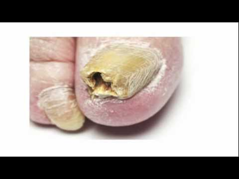 Toenail Fungus Treatment - A Fast Cure For Toenail Fungus You Must Try