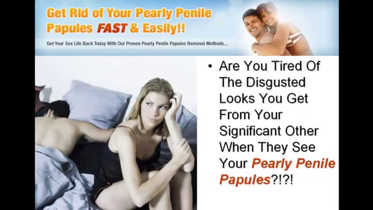 Pearly Penile Papules-Get Rid Of Pearly Penile Papules At ...