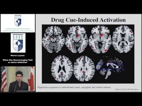 What does neuroimaging tell us? - Marco Leyton