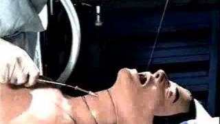 Retrograde Wire Intubation