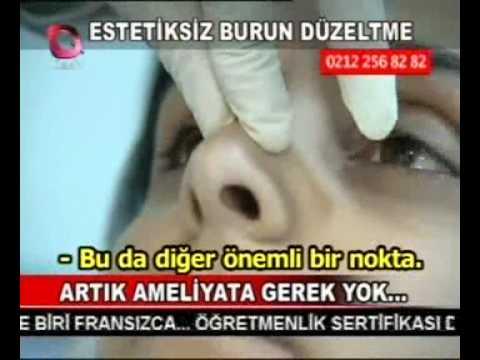 Ameliyatsız burun estetiği -  Prof.Dr.Ahmet Karacalar - www.burundesign.com