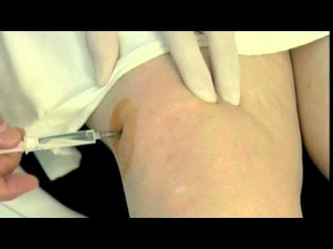 Infiltracion artrosis de rodilla con Ozono Medico.