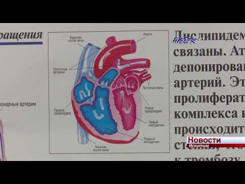 Заболевания сердца и сосудов чаще всего становятся причиной смерти искитимцев