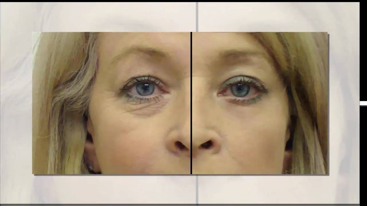 haloxyl and the under eye dark circles and bags treatment   youtube