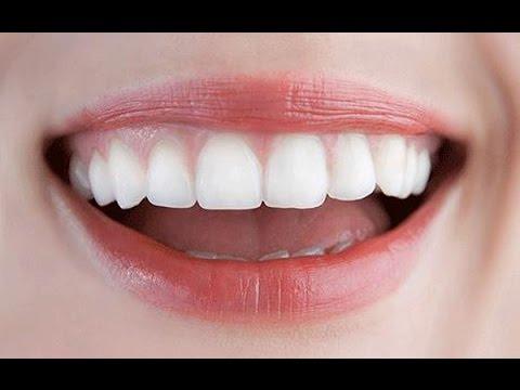 Hết hôi miệng, mảng bám răng chỉ sau 5 phút