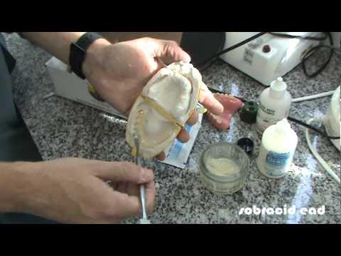 Placa Guia Cirúrgica - Implantodontia EAD.mpg