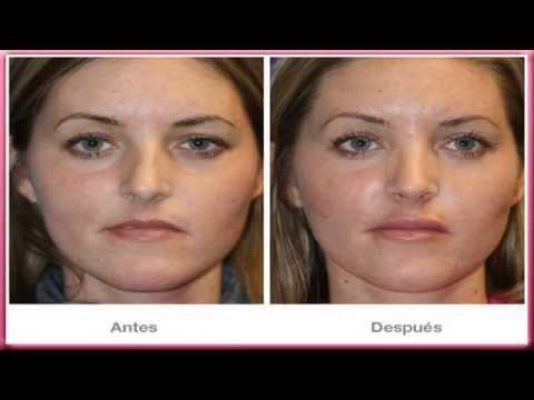 Aumento de Labios: Medicina estetica de aumento de labios con acido hialuronico y otros