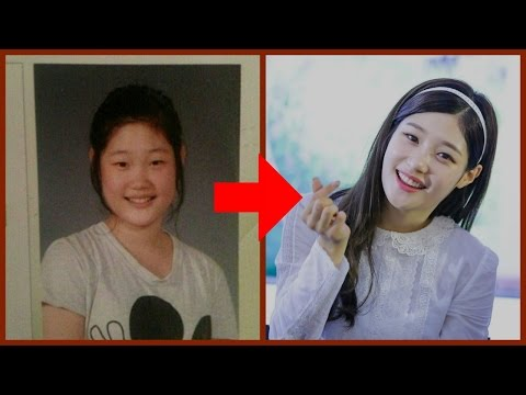 8 Idols that admitted to plastic surgery