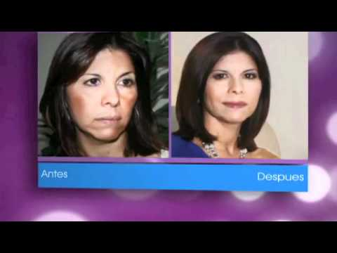 Tratamiento para quitar las manchas de la cara-Testimonios y casos reales Conffianz