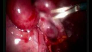 Adhesions and the female organs view on youtube.com tube online.