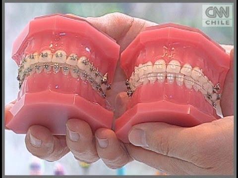 Frenillos de zafiro, nueva tendencia en la salud dental