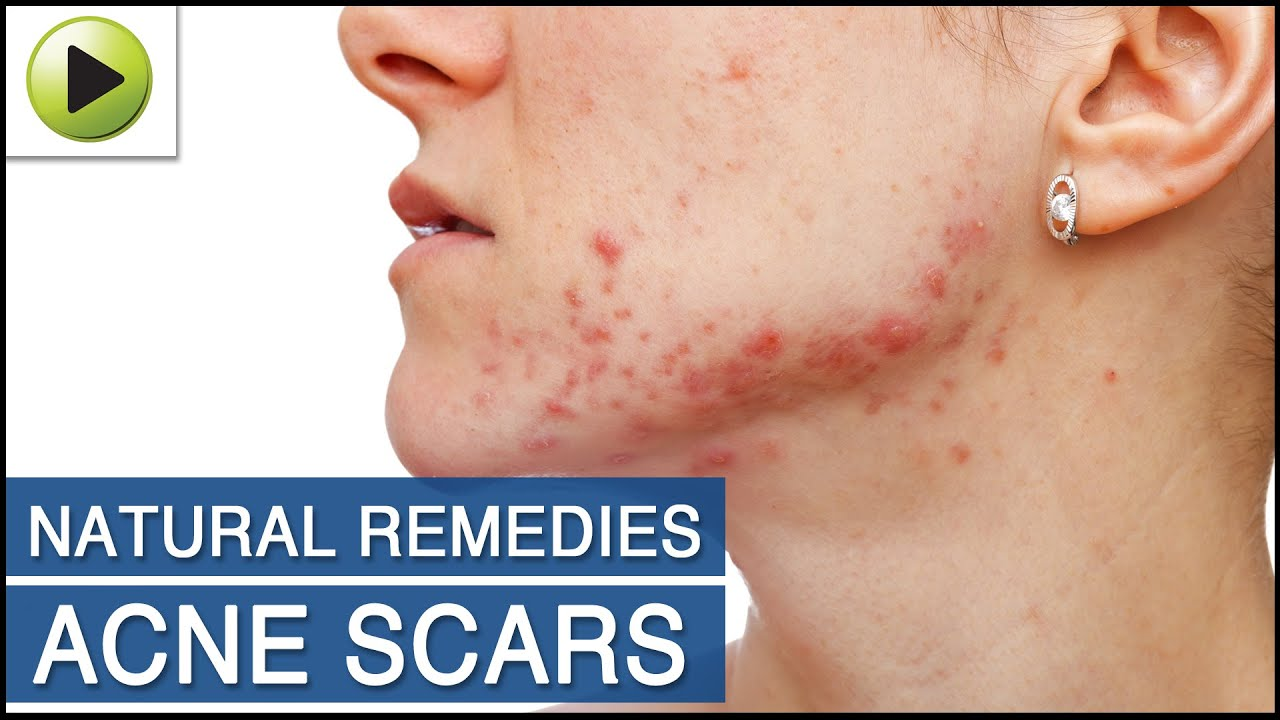 Acne Scars Natural Ayurvedic Home Remedies