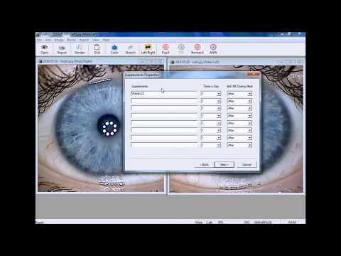 EyeRis: Diagnosing your Iris Photo's and Generating a Report
