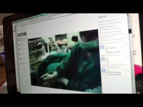 11 of 29   LifeLine Hospitals   Surgery using Google Glass   Press briefing
