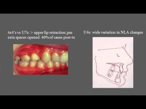 Treatment and stability of Class II Division 2 malocclusion in children and adolescents