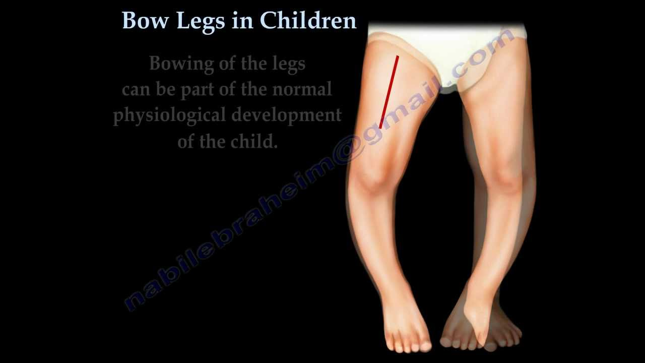 Bow Legs In Children - Everything You Need To Know