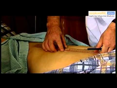 Acupuncture from East to West: Scientific Research & Clinical Application