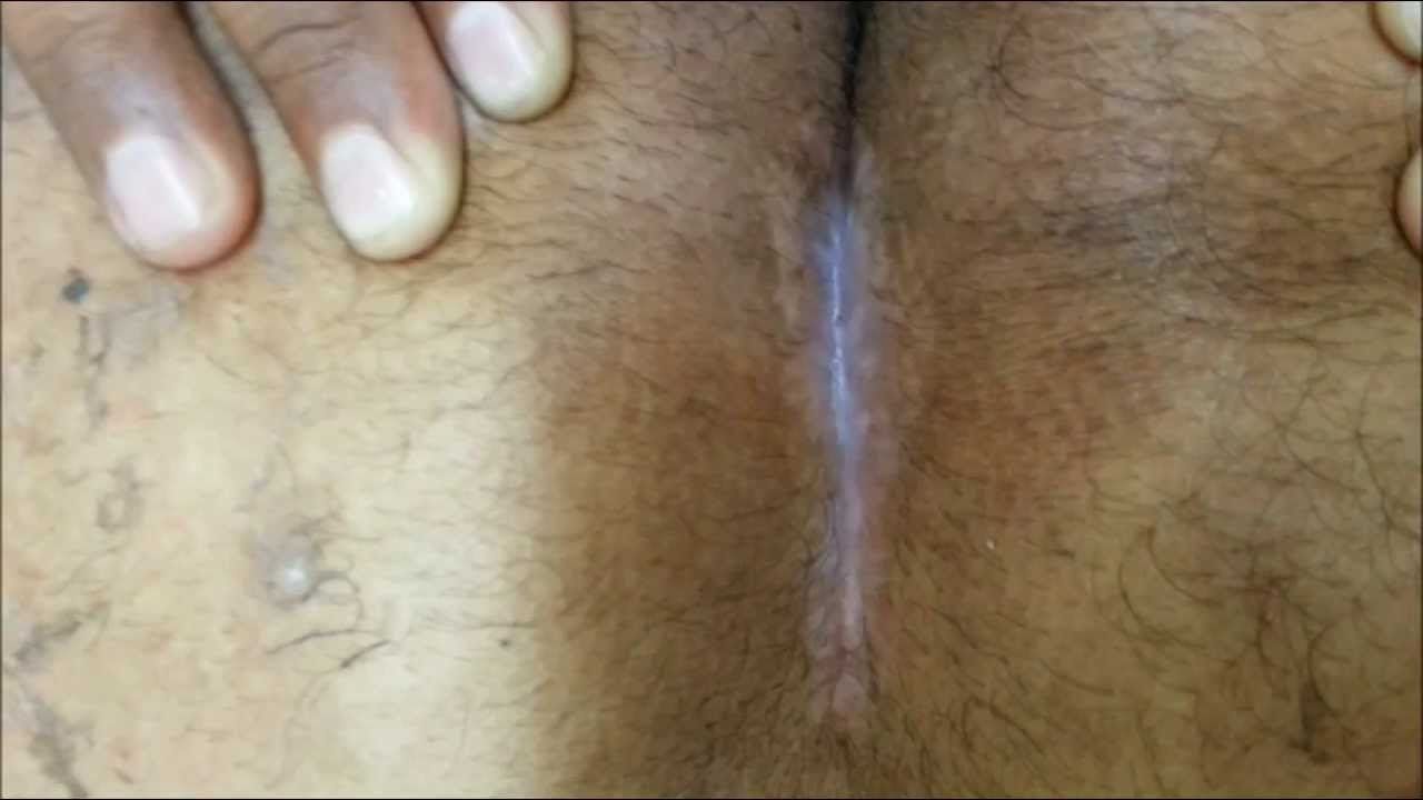 The Gallery For Gt Pilonidal Dimple