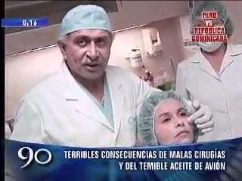 Consecuencias de Malas cirugías