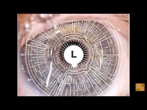 LIVE IRIDOLOGY READING - A Road Map for Healing