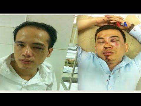 Thông tin trái ngược về vụ luật sư bị hành hung ở Việt Nam