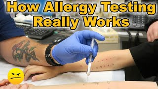 HOW TESTING FOR ALLERGIES ON KIDS REALLY WORKS