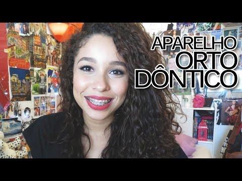 Minha experiência com APARELHO ORTODÔNTICO!