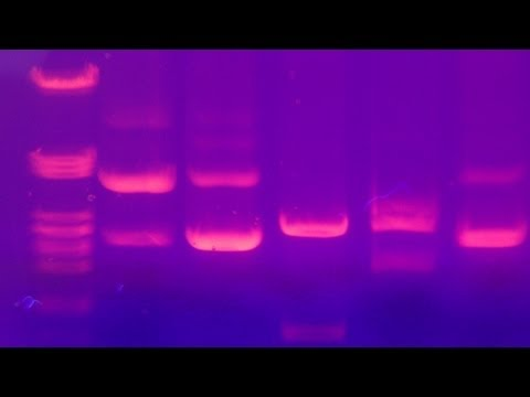 Agarose Gel Electrophoresis (Amrita University) -6mQGNDnOyH8