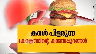 Nerkku Ner by Asianet News - A television discussion on Junk ood and health issues