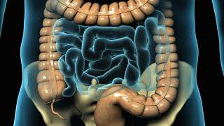 Apendicectomía Laparoscópica